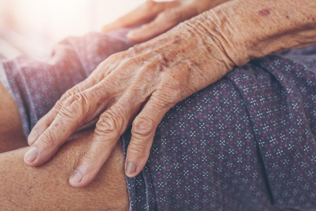 Detailní záběr: starší ženu bolí noha.