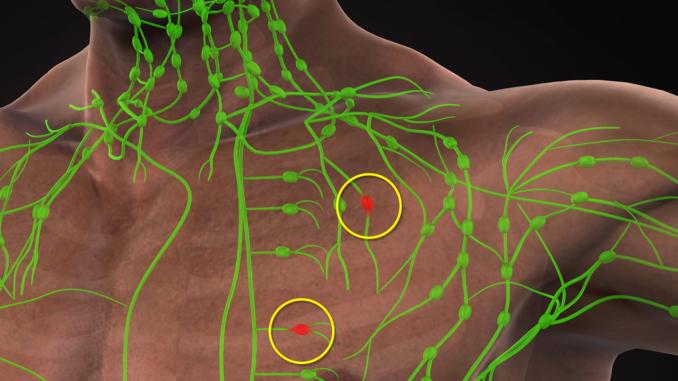 Lymfatický systém.